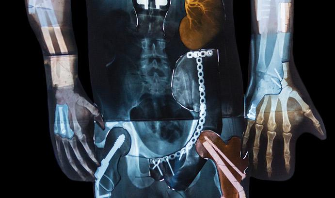skeleton xray with broken bones