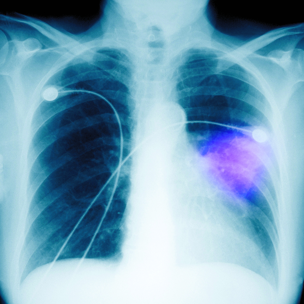 chest X-ray pneumonia