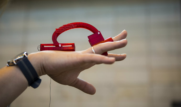 3-D-printed device designed to aid stroke victims